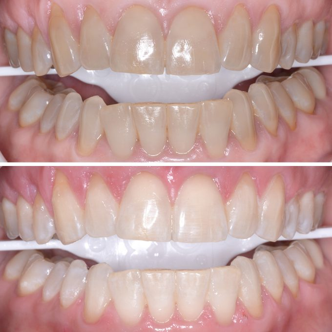 Teeth whitening at schultz family dental in newnan, georgia